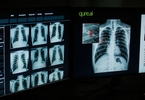 Access here alternative investment news about Indian Ai Startup In Talks To Raise $20M To Fight Tuberculosis - Nikkei Asian Review