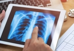Access here alternative investment news about Deepscribe Raises $5.3M To Transcribe Medical Notes With Ai